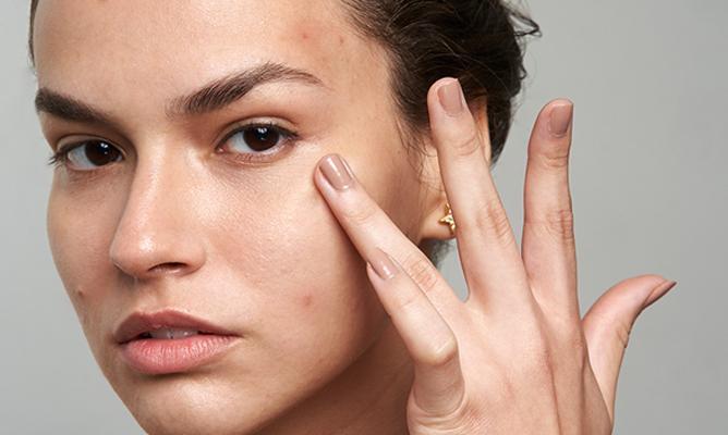 Mascné: ¿cómo eliminar las espinillas y granos del rostro por el uso de la mascarilla?
